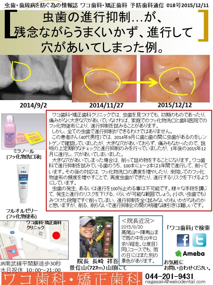 予防歯科通信2015年12月11日 no5号