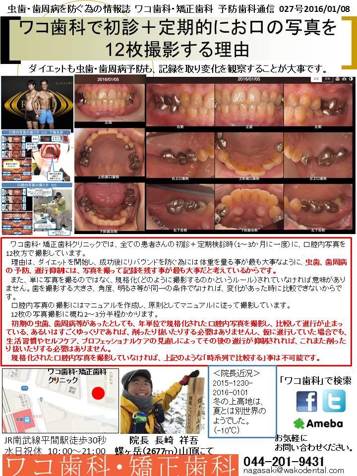 予防歯科通信28(2016年1月8日 no5号)
