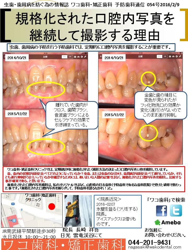 予防歯科通信54(2016年2月9日 no1号)