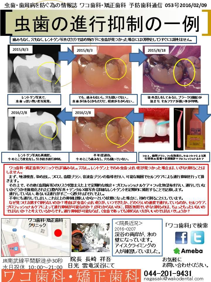 予防歯科通信55(2016年2月9日 no2号)