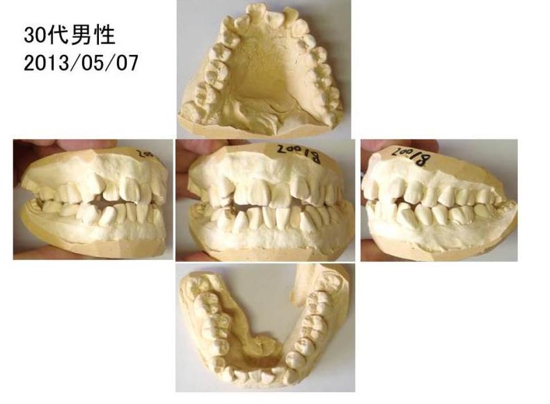 ワコ歯科・矯正歯科、矯正症例30代男性