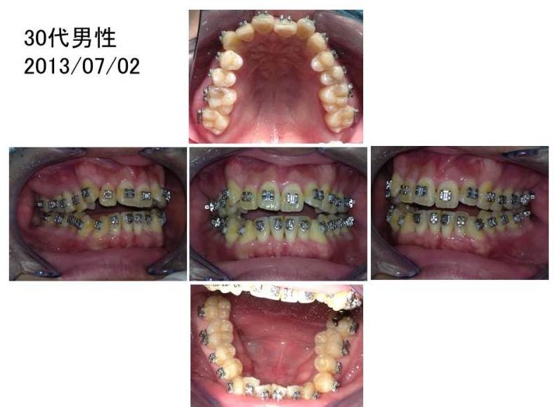 ワコ歯科・矯正歯科、矯正症例30代男性2