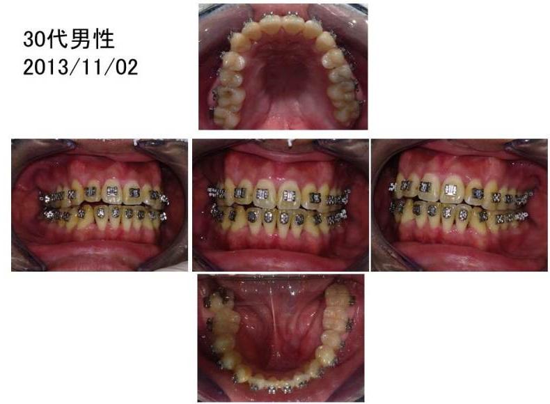 ワコ歯科・矯正歯科、矯正症例30代男性3