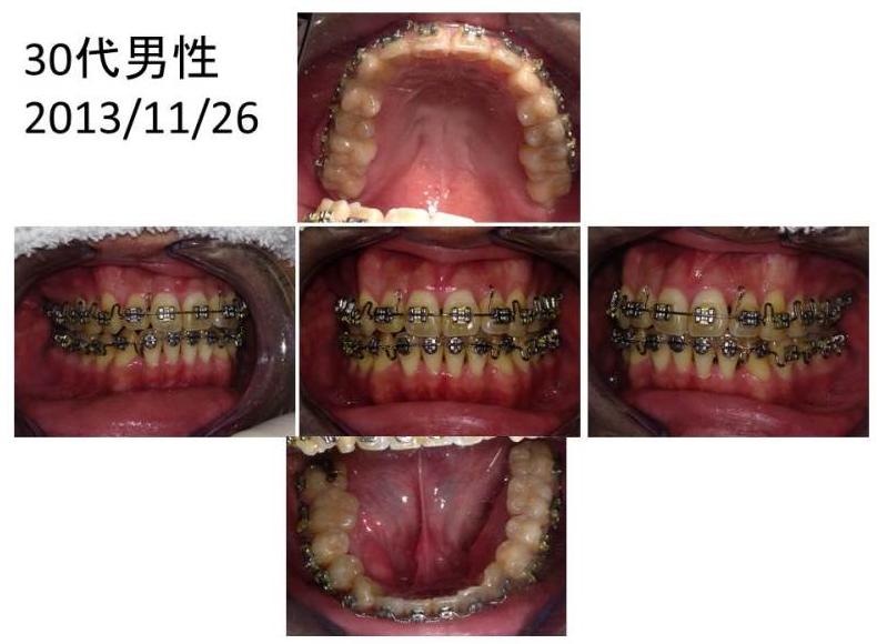 ワコ歯科・矯正歯科、矯正症例30代男性4