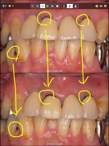 フッ化物応用その他による、虫歯の進行抑制の例(40代男性)001