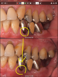 フッ化物応用その他による、虫歯の進行抑制の例(40代男性)002
