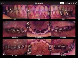 フッ化物応用その他による、虫歯の進行抑制の例(40代男性)006